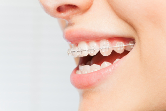 Traditional braces